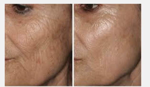 Micro Needling - All About Me Laser Med Spa