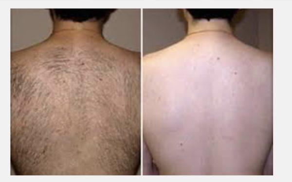 Наиболее подвержены риску термического повреждения кожных покровов люди: с типами кожи (классификация по фитцпатрику) iv, v и vi.
